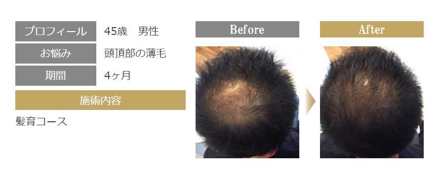 ACTIVART[アクティバート]髪育プラグラムで薄毛・抜け毛を改善
