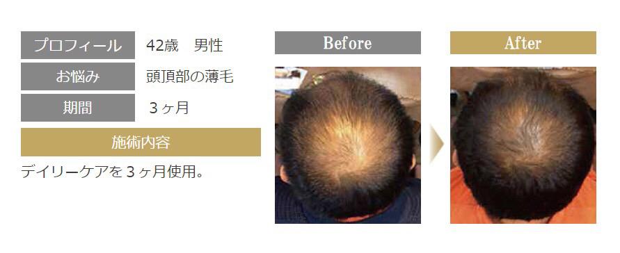 ACTIVART[アクティバート]髪育メソッドで薄毛・抜け毛を改善