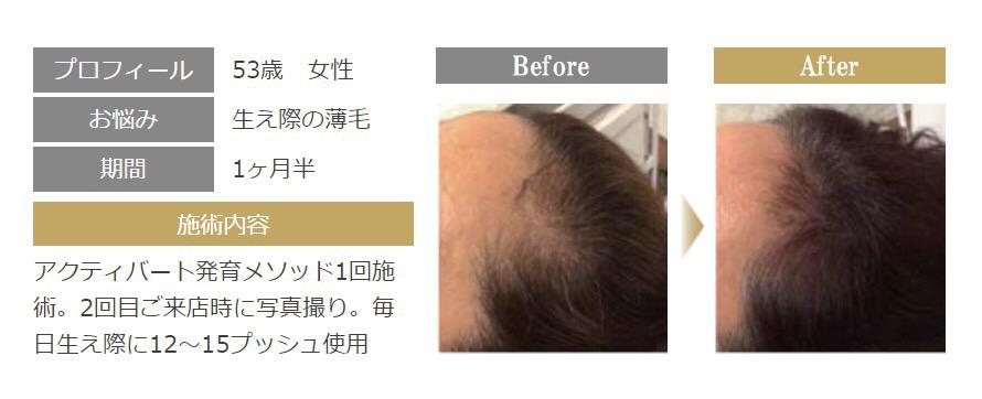 ACTIVART[アクティバート]髪育メソッドで女性の薄毛・抜け毛を改善